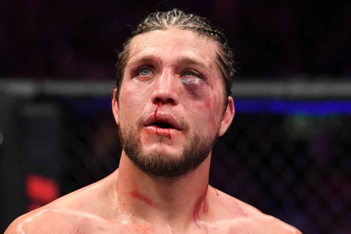 Brian Ortega's Gruesome Injuries After Suffering a Beatdown at the Hands of Max Holloway - EssentiallySports